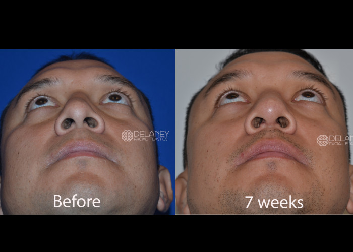 Rib Graft Rhinoplasty