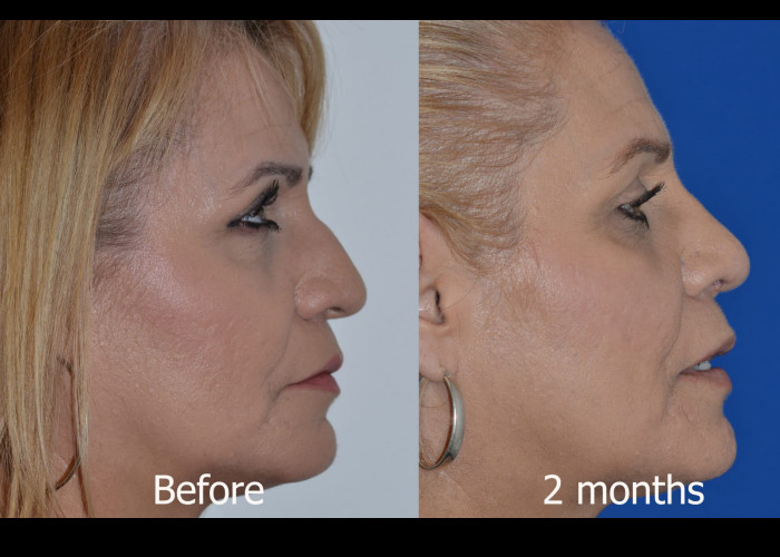 Primary Rhinoplasty with Rib graft