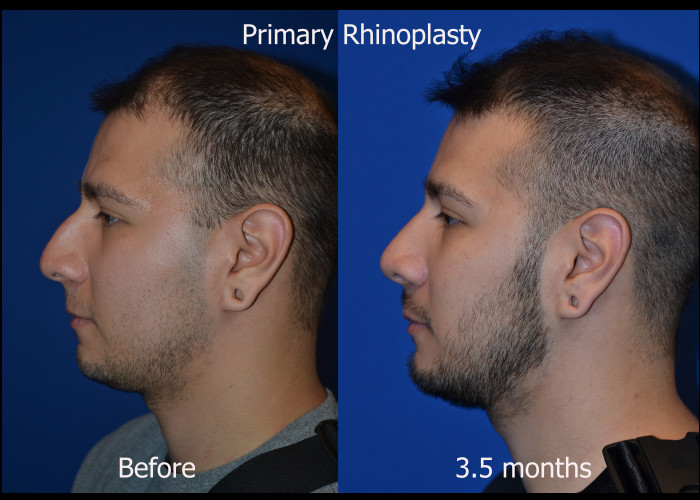 Primary Rhinoplasty