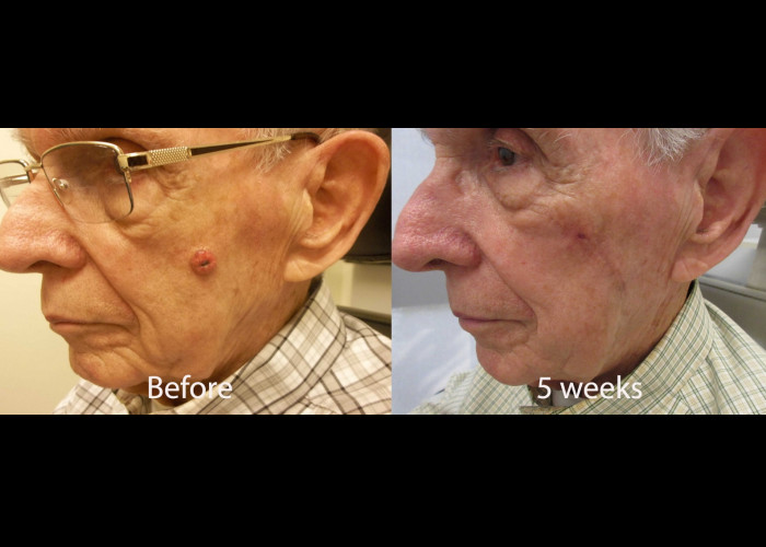 Cheek mass excision and reconstruction